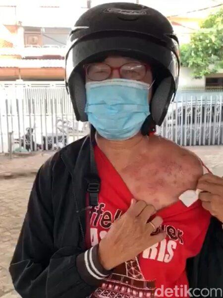 Wanita Ini Mengaku Kulitnya Melepuh Setelah Disemprot Disinfektan PMK Surabaya, Ternyata Begini Faktanya