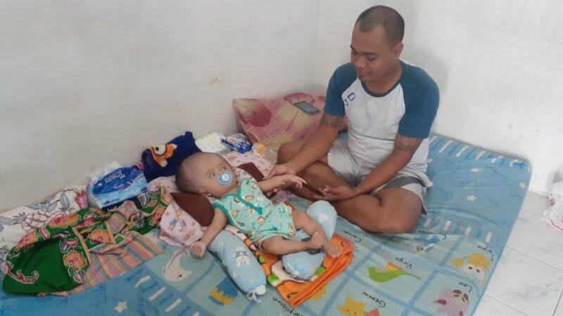 Terdampak Covid-19, Keluarga Bayi Hidrosefalus di Madiun Belum Tersentuh Bansos Pemerintah