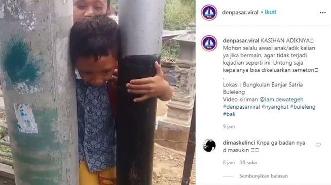 Waduh! Kepala Bocah di Bali Terjepit di Antara Tiang Listrik