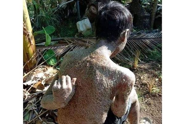 Viral Tubuh Warga Indramayu Bersisik, Sebenarnya Penyakit Apa?