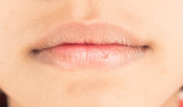 Bahan Alami Berikut Bantu Anda Mengatasi Bibir Kering Atau Pecah-Pecah
